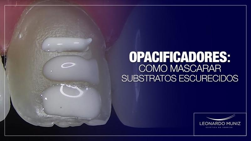 Opacificadores Como mascarar substratos escurecidos Leonardo Muniz