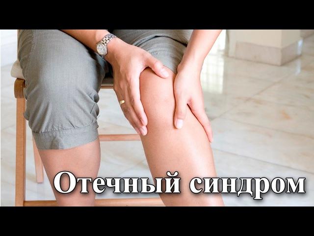 На приеме у врача Выпуск 34 Отечный синдром