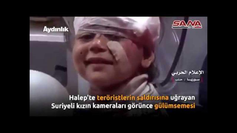Halepte teröristlerin saldırısına uğrayan Suriyeli kızın kameraları görünce gülümsemesi