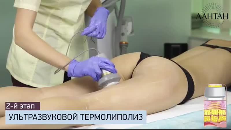BodyLine - уникальный метод коррекции фигуры (бодилайн)- Клиника Лантан.mp4
