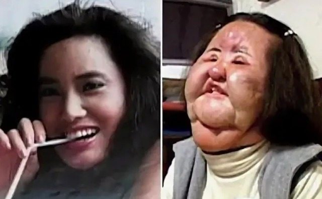Жертвы пластической красоты (18+)