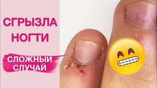 Обгрызенные ногти (на публикацию)