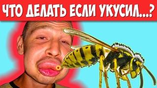 ЧТО ДЕЛАТЬ ПРИ УКУСЕ НАСЕКОМЫХ:  ос, пчел, шершней, клопов, пауков и клещей. Чем обработать укус?